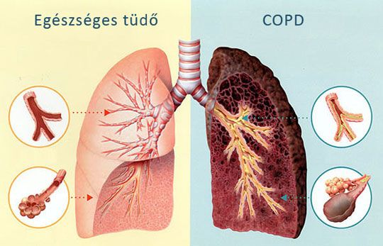 copd201711 1